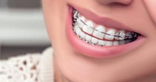 بـ  3 خطوات بسيطة.. اعرف طريقة تنظف تقويم الأسنان