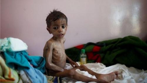 الأمم المتحدة: ملايين اليمنيين يتناولون وجبة غذائية واحدة كل يومين