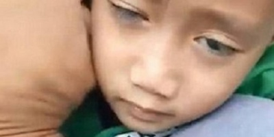 بالصور| بسبب اللعب على الهاتف طفل يصاب بحالة مرضية حيرت الأطباء