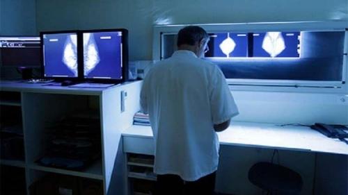 اكتشاف طريقة لعلاج أخطر أنواع سرطان الثدي