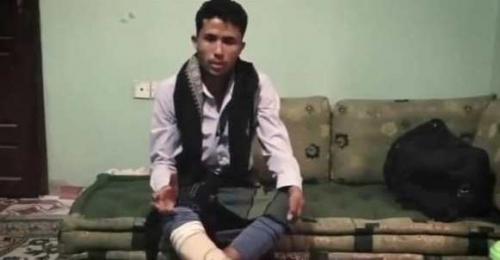 قصة مُثيرة لشاب يمني عاد للحياة مرتين من كفن الموتى (صورة)