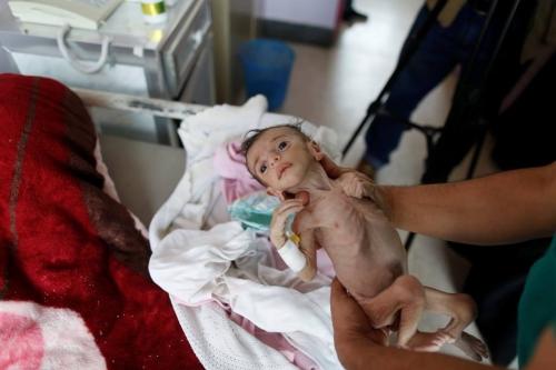 شاهد.. صور مرعبة لأطفال باليمن يعانون من سوء التغذية