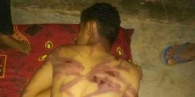 المهدلي..فر من سجون المليشيات بعد تعذيبه بوحشية