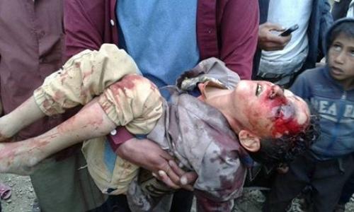 مقتل طفل برصاص قناص حوثي في تعز