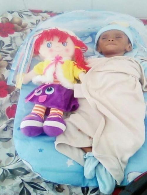 وفاة طفلة نازحة من الحديدة في عدن (صورة )