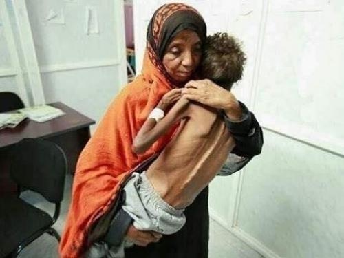 """ثائر""""..طفل يختزل معاناة وطن أبيه الشهيد وأمه ضحيّة السرطان"""