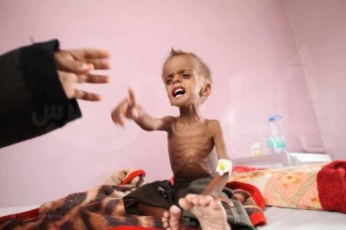 حجة: سوء التغذية  يودي بحياة طفلة