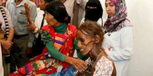 أرقام مفزعة في تقرير للأمم المتحدة بشأن المجاعة والبنزين والريال اليمني