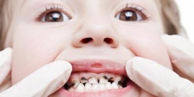 أعشاب طبيعية لعلاج آلام تسوس الأسنان اللبنية عند الأطفال
