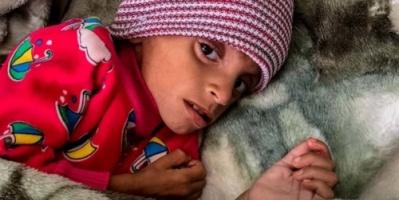 أمل حسين.. رحلة في حرب الجوع تلخص ظروف الأطفال في مناطق سيطرة الميليشيات