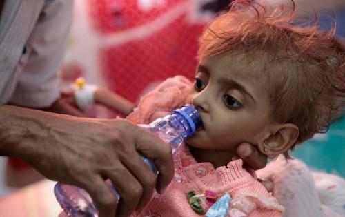 """المدير الإقليمي ليونيسيف: أطفال اليمن يعيشون في """"جحيم"""""""
