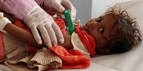 تحرك عالمي لإنقاذ 14 مليون يمني من المجاعة