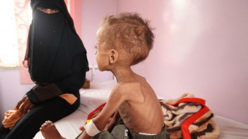 برنامج الأغذية العالمي: شبح المجاعة يهدد نصف سكان اليمن