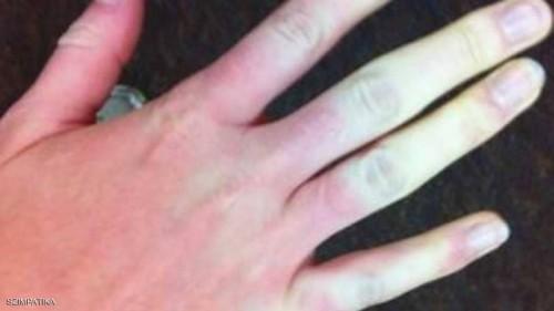 مرض شتائي يمنح الجلد 3 ألوان