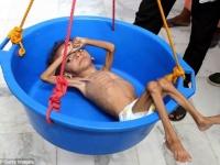 """عقب زيارته لليمن رئيس برنامج الغذاء العالمي """" ضعوا حدا لهذه الحرب المروّعة """""""