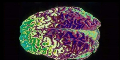 دراسة تكشف عن البروتين المسئول عن شباب الدماغ