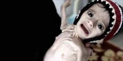 تفاديُا للمجاعة في اليمن ..الأمم المتحدة تطالب مجلس الأمن بإنهاء الصراع