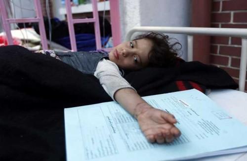 بالأرقام.. وباء الدفتيريا يحصد أرواح الأبرياء في اليمن