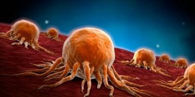 تقرير علمي: خطر الإصابة بمختلف أنواع السرطان يتزايد مع تقدم العمر