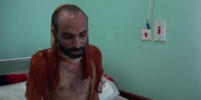 شاهد.. وكالة أمريكية تفضح وسائل التعذيب بالسجون الحوثية