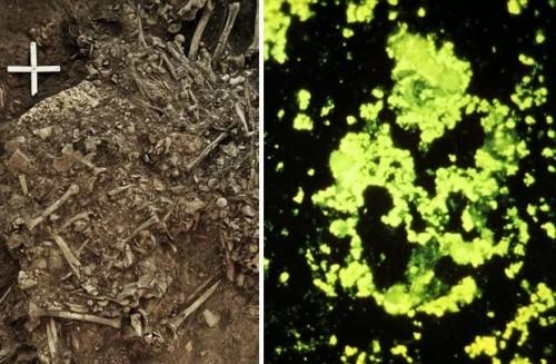 اكتشاف أول سلالة طاعون في تاريخ.. ما عمرها؟