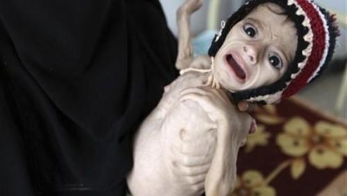 منظمات أممية تحذر من انعدام الأمن الغذائي باليمن