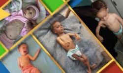 """صحيفة بريطانية: """"فيسبوك"""" يفرض رقابة على صور الأطفال الجوعى في اليمن"""