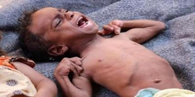 """نشطاء تويتر يطلقون هاشتاج """"المجاعة بمسيمير لحج"""""""