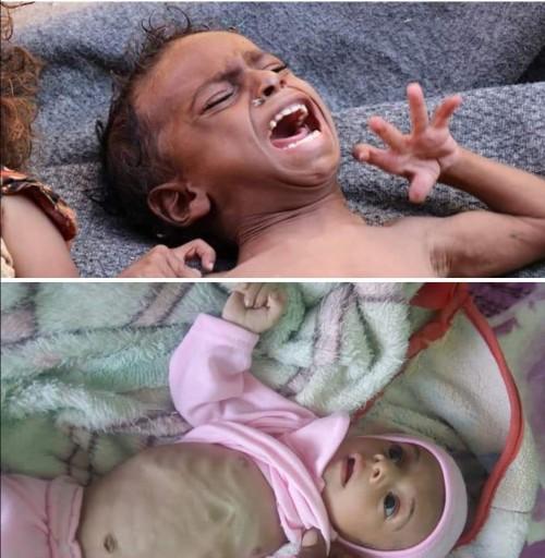 """""""المجاعة تجتاح المسيمر"""".. نشطاء يتداولون صورا لأطفال المدينة"""