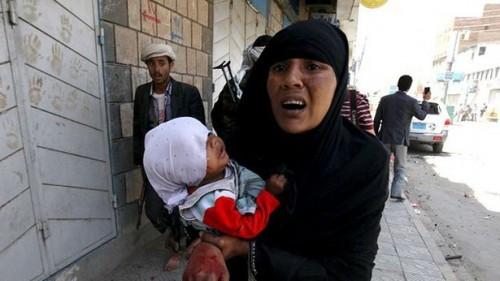 400 من كل 100 ألف امرأة يلقين حتفهن أثناء الولادة في اليمن (تفاصيل)