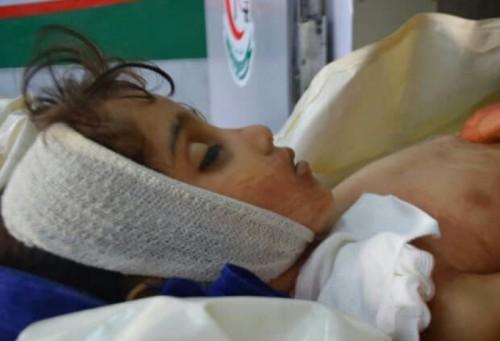 قناص حوثي يغتال الطفلة زينب بدم بارد في تعز ويصيب شقيقها