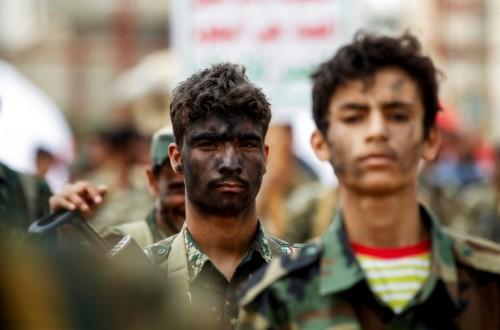 """إعلامي يصف الحوثيين بـ """"الورم"""""""
