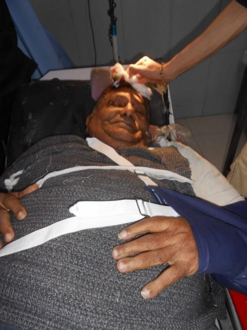 تعرض عميد المسرح اليمني لحادث إغماء