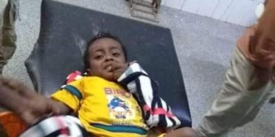 رصاص راجع يتسبب في دخول طفل العناية المركزة بأبين (شاهد)