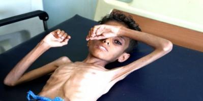 شبح المجاعة يهدد اليمن.. المليشيات تنهب والحكومة محلك سر