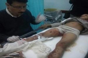 إصابة مدنيين بمقذوف حوثي في مأرب (أسماء)