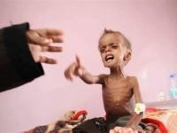 إنشاء قسم طبي بتعز للحد من انتشار أمراض سوء التغذية