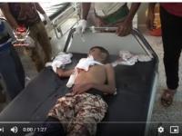استشهاد طفل وإصابة ابنة عمه في قصف حوثي بحيس (فيديو)