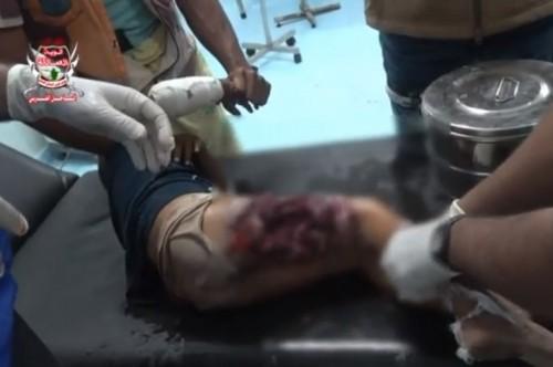 بعد استشهاد زوجته.. مواطن يكشف عن تفاصيل مجزرة المليشيات في حيس (فيديو)