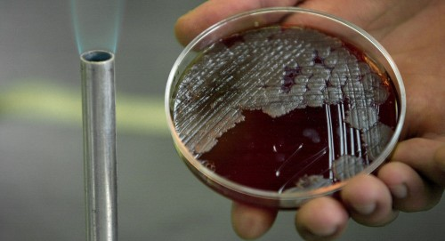 دراسة: بكتريا الفم تسبب مرض الزهايمر
