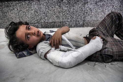 برنامج الأغذية العالمي: الجوع في اليمن يهدد جيلا بأكمله
