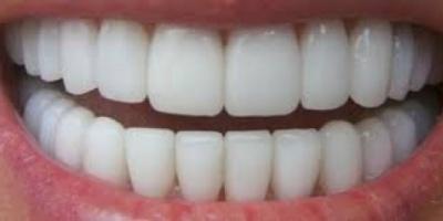 دراسة حديثة ..الأسنان تكشف حالتك الصحية والعقلية