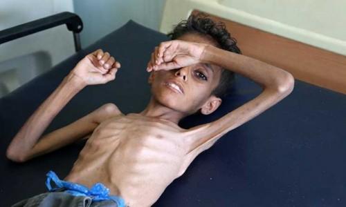 اليونيسيف تدق ناقوس الخطر.. الجوع ينهش في أطفال اليمن
