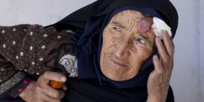 إصابة 500 شخص بداء اللشمانيا في ليبيا