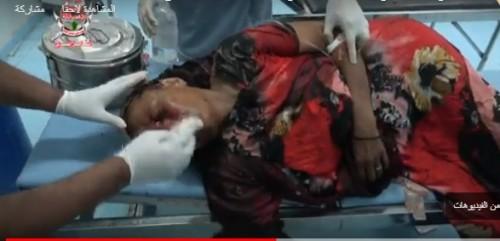 إصابة مسنة جديدة بشظايا قذيفة حوثية على مدينة حيس بالحديدة (فيديو)
