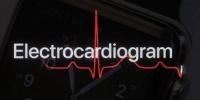 دراسة: ساعة أبل تقدر على رصد مشاكل القلب