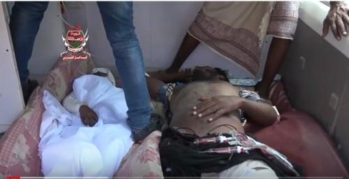 إصابات خطيرة في انفجار لغم حوثي في منزل مواطن بالحديدة (فيديو)