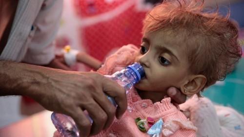 """قصة مأساوية.. """" الطفلة عفاف """" التي حوّلتها الحرب الحوثية إلى """" لحم على عظم """""""