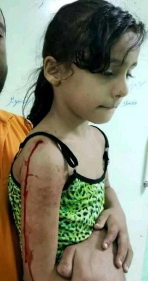إصابة طفلة بطلق ناري راجع بحي ريمي في مديرية المنصورة