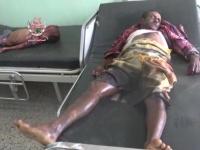 قصف وتهجير وتدمير.. غياب الضغط الدولي يدفع الحوثي للتصعيد في الحديدة